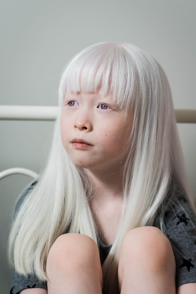 My Experience Adopting a Child with Albinism - The Everymom